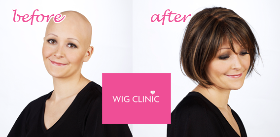 Alopecia Before After Ireland Wig Clinic Cork 2