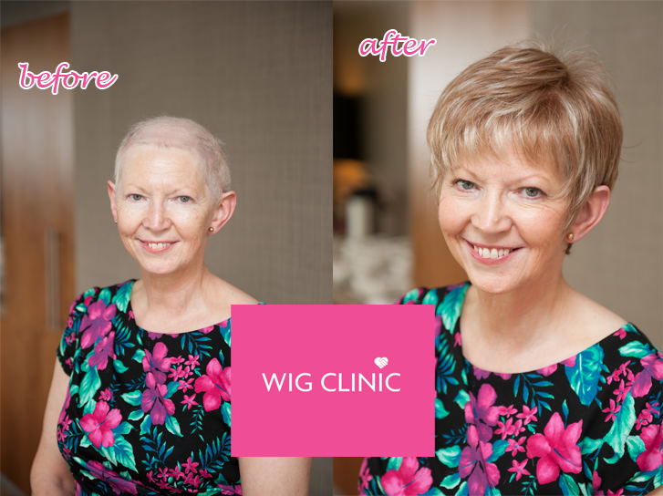 Alopecia Before After Ireland Wig Clinic